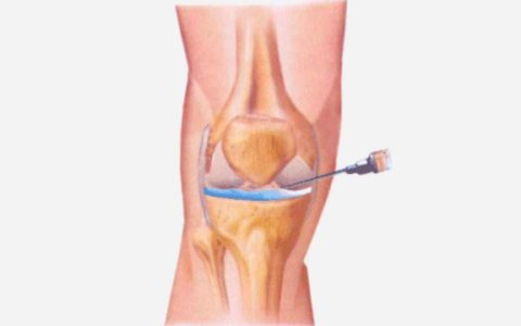 The ABT-981 drug for the treatment of osteoarthritis