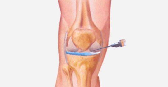 El fàrmac ABT-981 pel tractament d'artrosis